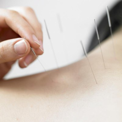 Acupuncture for Scar Therapy