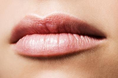 How to Get Rid of Vertical Wrinkles Around the Upper Lip