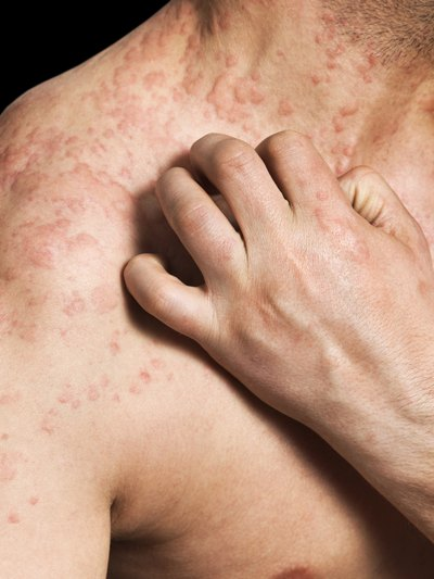 Can Shingles Look Like Hives - abouthives.net