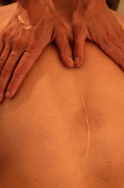 Safe Effective Benefits of Ultrasound Massage