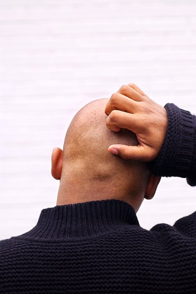 Complications That Can Result From Scabies