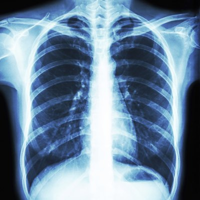 Can Calcium Build Up Lung Be Cancer