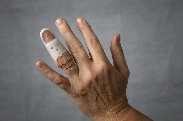 Recovering From Finger Surgery