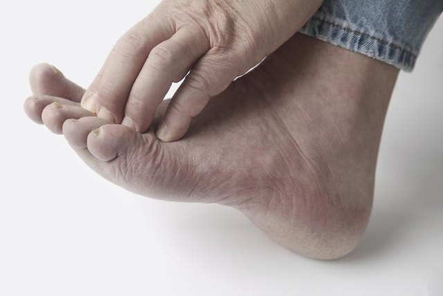 Psoriasis patients who have these associated conditions will benefit from a gluten free diet 1