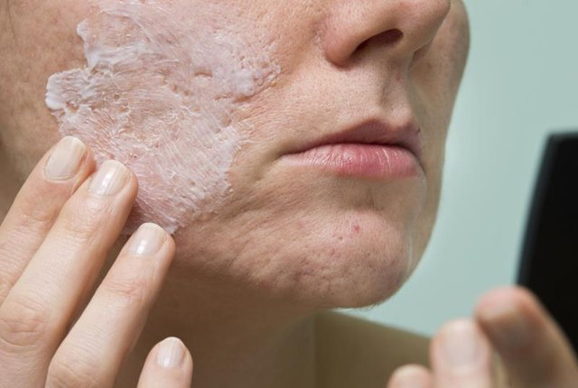Acne in People Over 40