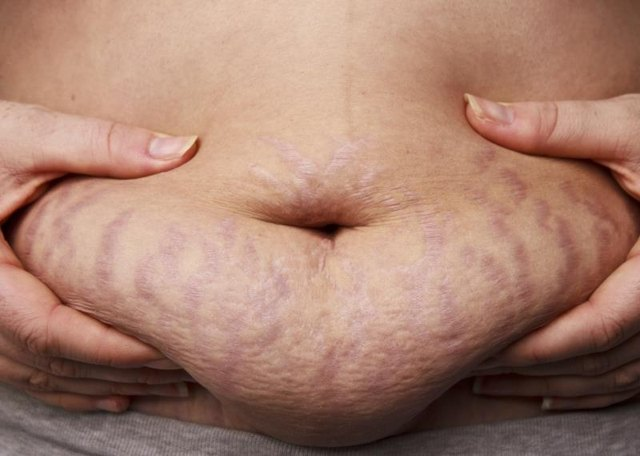 What Is the Difference Between Cellulite and Stretch Marks?