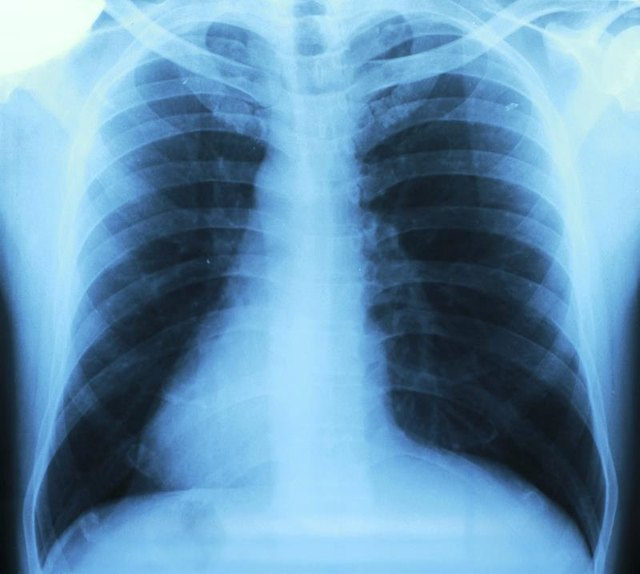 Lung Problems That Cause Chest Pain