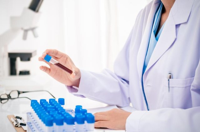 What Is High RDW and Low Ferritin?
