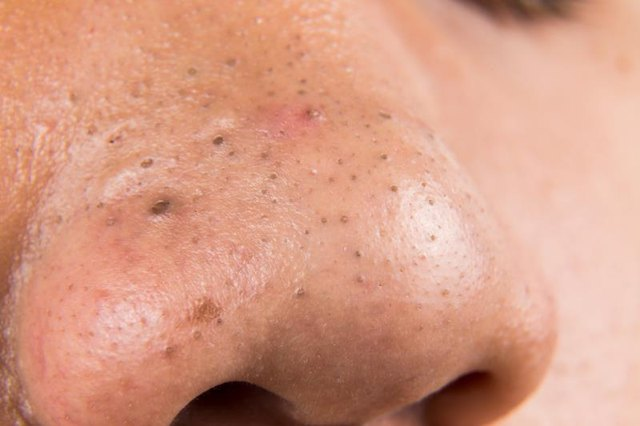 how to clear skin of blackheads