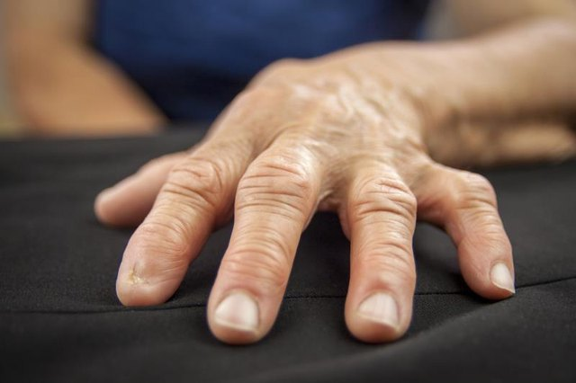 Symptoms of Rheumatoid Arthritis in the Hands and Fingers