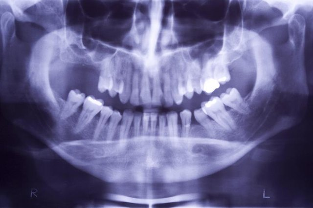 Why Teeth Become Loose