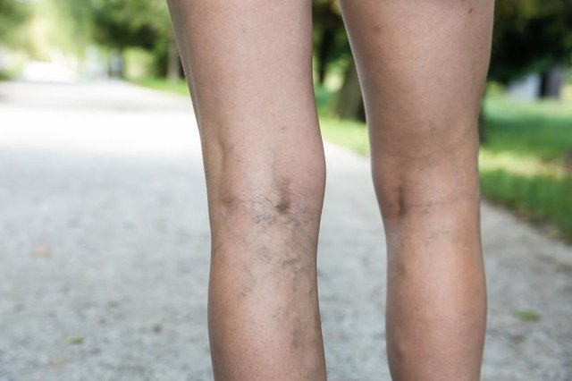 Leg Veins and Pain After Exercise
