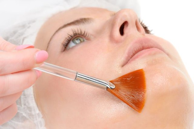 Enzyme Peel for Acne