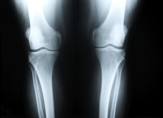 What Are the Causes of Knee Pain in Children? | LIVESTRONG.COM