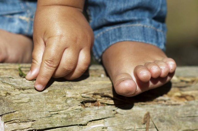 Painful Redness on the Hands and Feet in Children