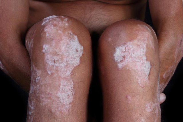 Psoriasis on the Thighs