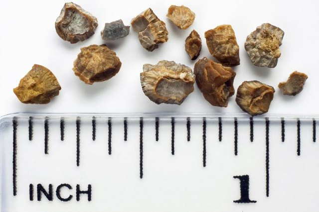 Infections Caused by Untreated Kidney Stones