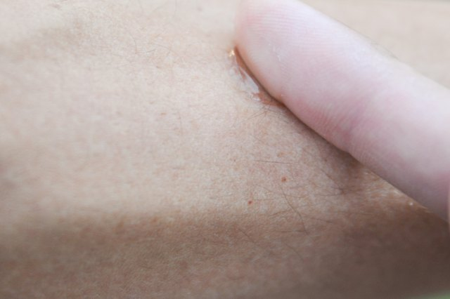 How to Remove Ingrown Arm Hair