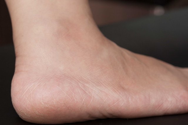 Home Remedies for Extremely Dry Feet