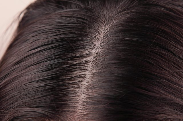 How to Clean Sebum From the Scalp