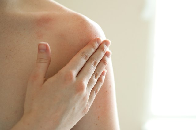 How to Rub Vitamin E on the Skin