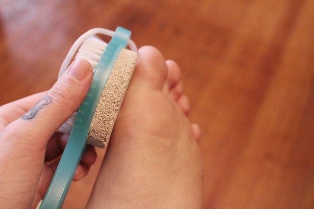 How to Remove a Foot Callus