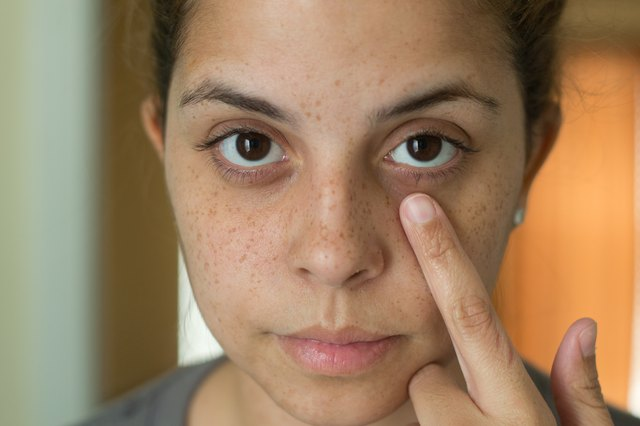 Home Remedies for Dark & Dry Skin Around the Eyes