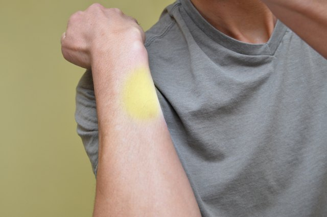 How to Get Rid of Scratch Scars