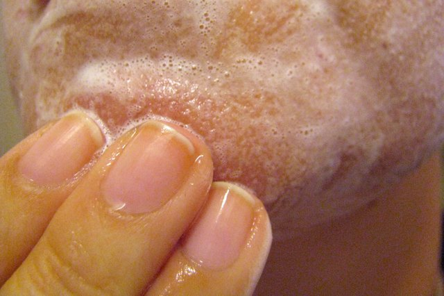 Homemade Blackhead Cleanser