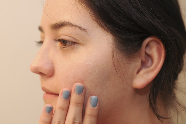 How to Stop Peeling Skin From Acne