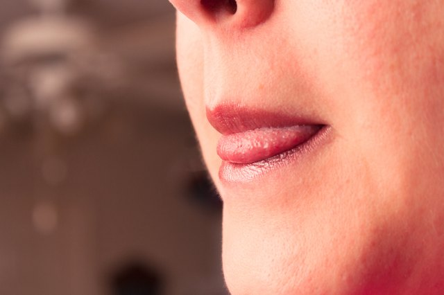How to Repair Cracked Lips