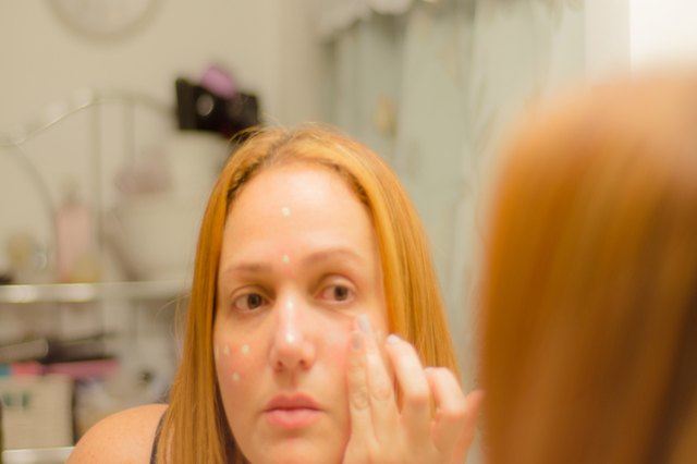 How to Cover Redness on Your Face