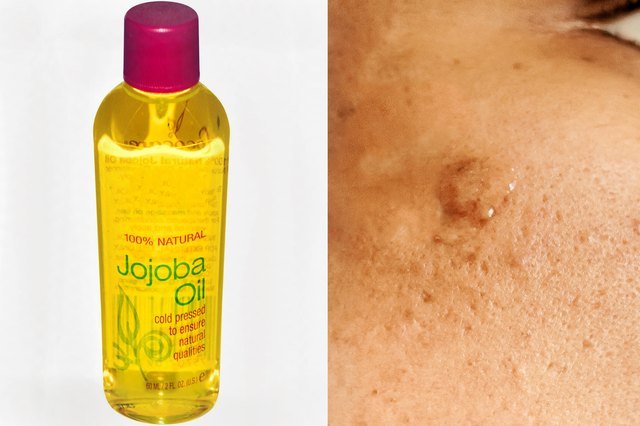 Can Jojoba Oil Help Acne-Prone Skin?
