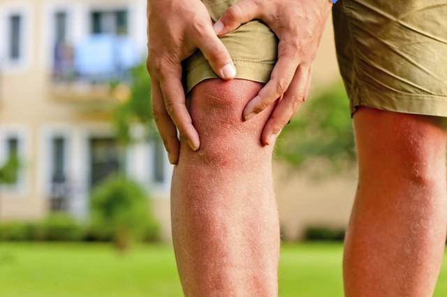 Muscle aches may be caused by edema.