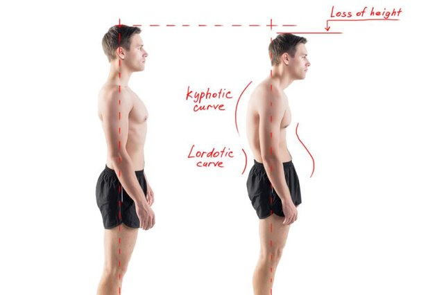 Poor posture can lead to a caved-in chest.