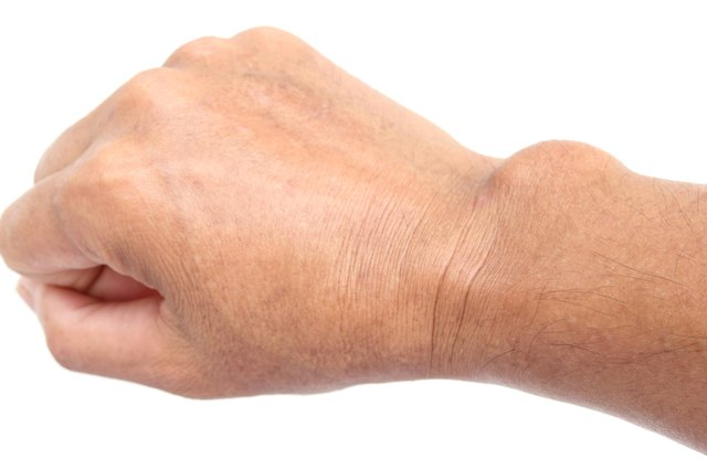 Ganglion cysts can make your wrist appear deformed.