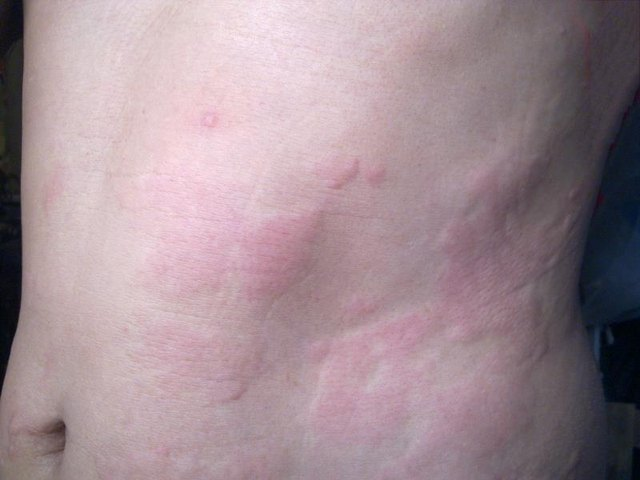 Hives are an allergy symptom.