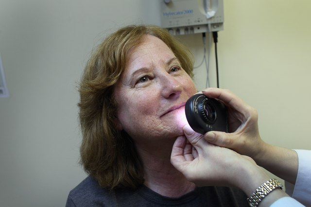 Researchers are studying the potential use of caffeine as part of a treatment for nonmelanoma skin cancer.