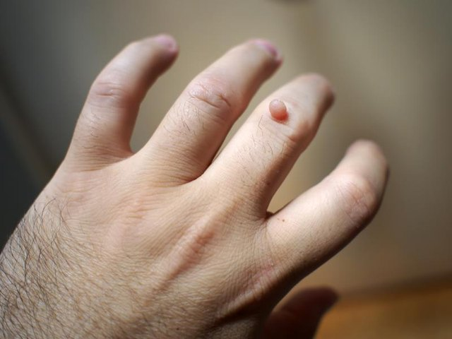 How to Know if a Wart Freeze Is Working?