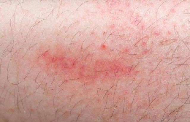 how to get ridof facial rash