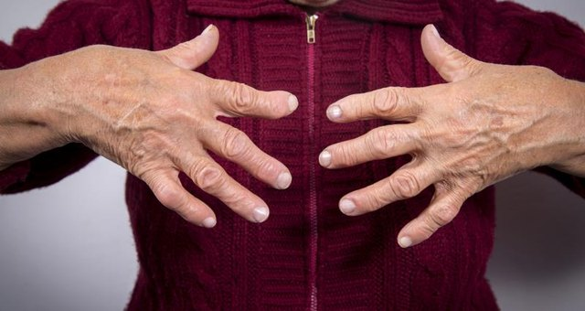 Long-Term Effects of Gout