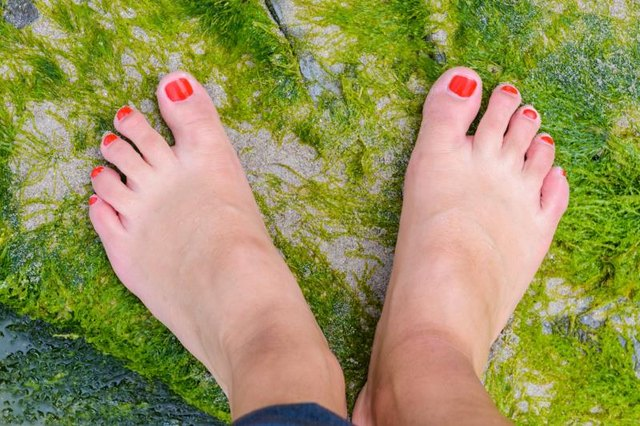 Rashlike Pigmentation on the Foot