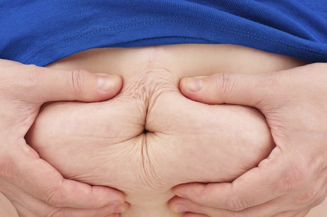 Subcutaneous fat is not as harmful as visceral fat, which is stored around your organs.
