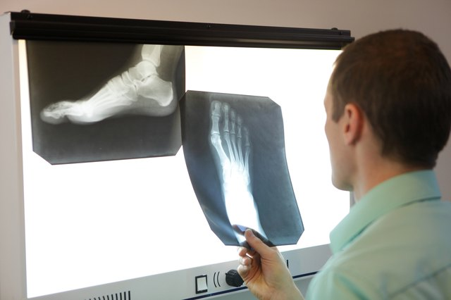 Your doctor may want to conduct an x-ray to rule out a fracture.