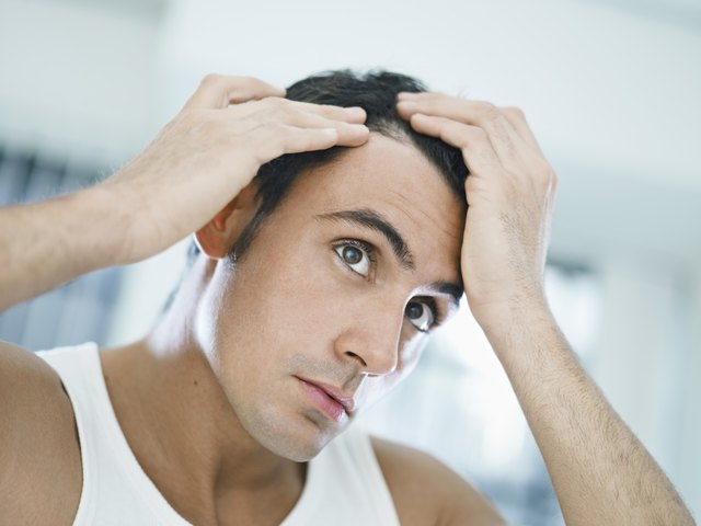 Prescription corticosteroids and over-the-counter foam can be used to treat mild hair loss.