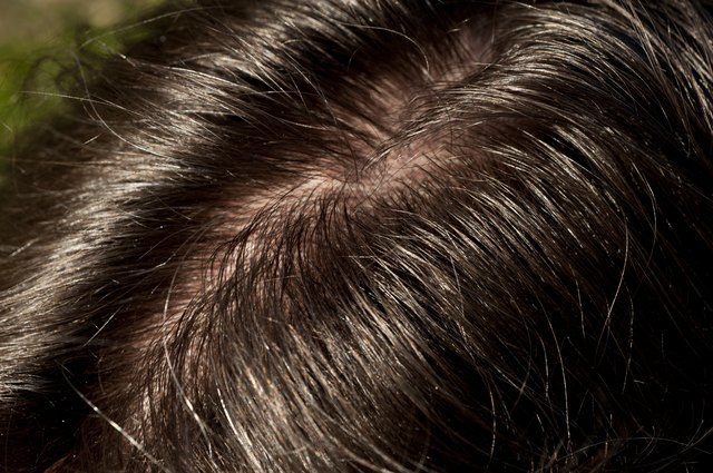 Close-up on man's shiny and oily hair