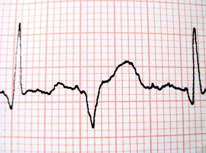 How Fast Is a Healthy Heartbeat?