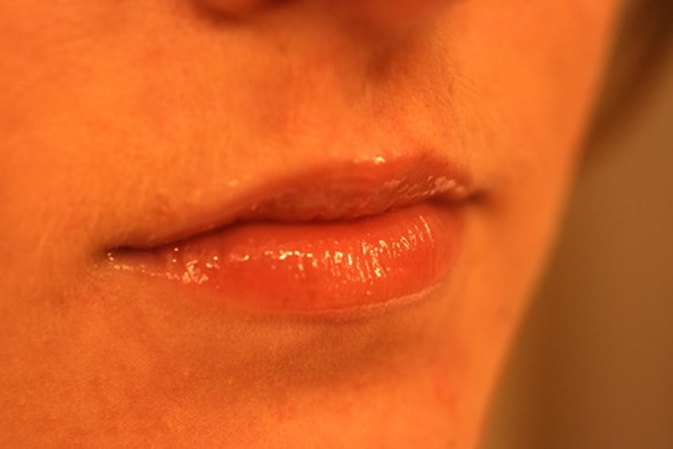 Home Remedies That Remove Folds Aaround The Lips