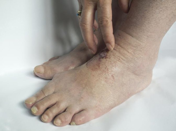 Home Treatment of Scabies
