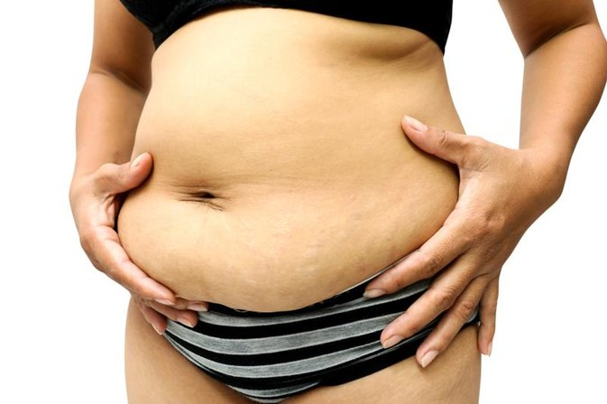 How Do Women Get Rid of Fat Rolls & Scar Tissue?